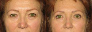 Eyelid Patient 1 | Guyette Facial & Oral Surgery, Scottsdale, AZ