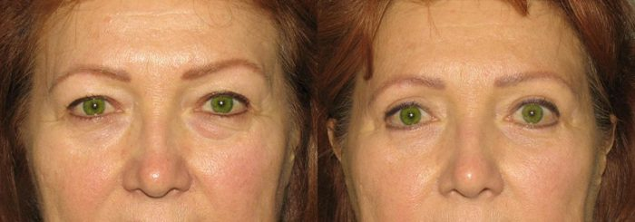 Eyelid Patient 1   Guyette Facial & Oral Surgery, Scottsdale, AZ