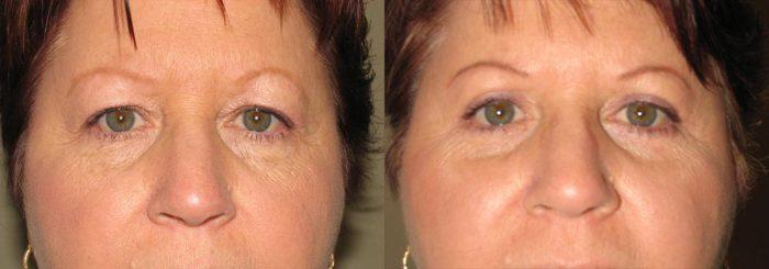 Eyelid Patient 2   Guyette Facial & Oral Surgery, Scottsdale, AZ