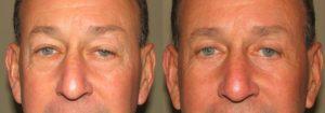 Eyelid Patient 3 | Guyette Facial & Oral Surgery, Scottsdale, AZ