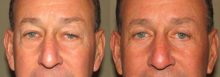 Eyelid Patient 3   Guyette Facial & Oral Surgery, Scottsdale, AZ