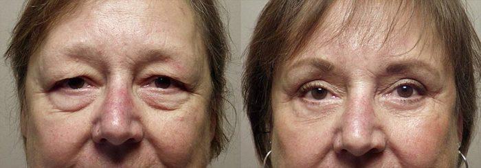 Eyelid Patient 4   Guyette Facial & Oral Surgery, Scottsdale, AZ