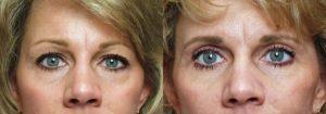 Eyelid Patient 5 | Guyette Facial & Oral Surgery, Scottsdale, AZ