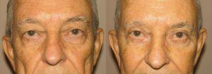 Eyelid Patient 6 | Guyette Facial & Oral Surgery, Scottsdale, AZ