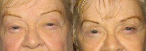 Eyelid Patient 9 | Guyette Facial & Oral Surgery, Scottsdale, AZ
