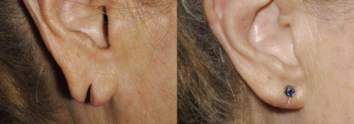 Earlobe Revision Patient 1   Guyette Facial & Oral Surgery, Scottsdale, AZ