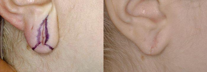 Earlobe Revision Patient 2   Guyette Facial & Oral Surgery, Scottsdale, AZ