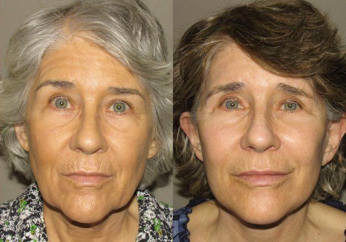 Facelift Patient 1 | Guyette Facial & Oral Surgery, Scottsdale, AZ