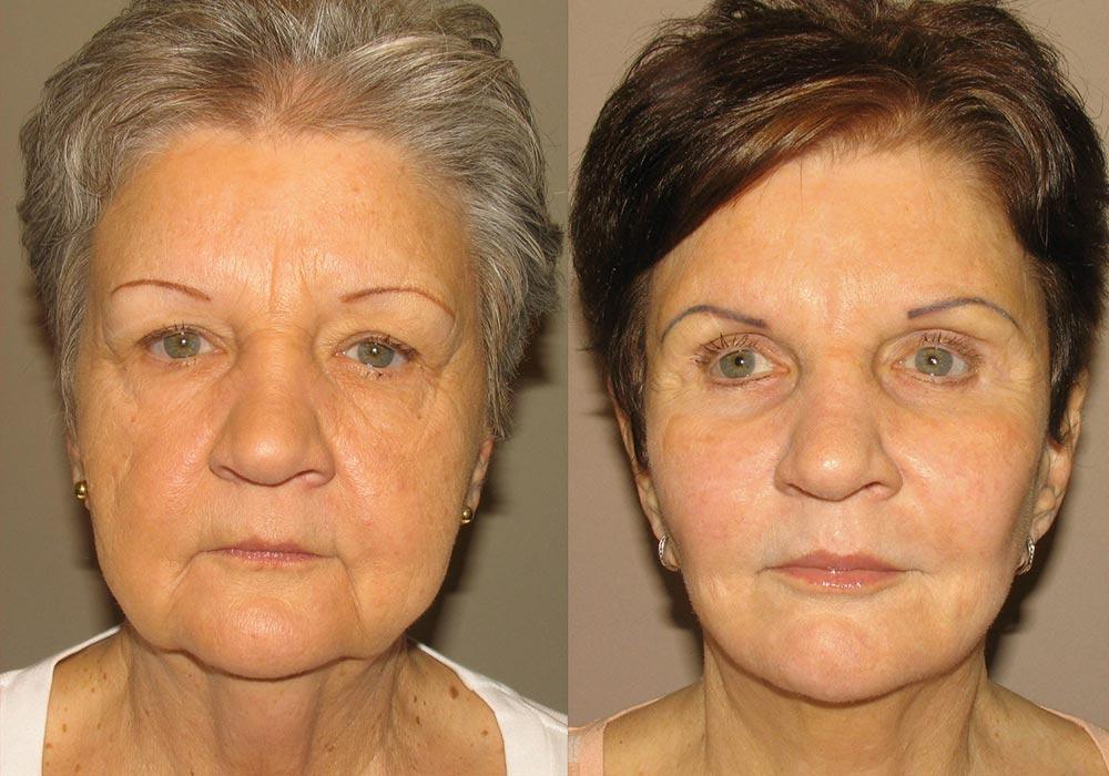 Facelift Patient 3 | Guyette Facial & Oral Surgery, Scottsdale, AZ