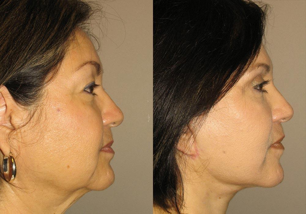Facelift Patient 7 | Guyette Facial & Oral Surgery, Scottsdale, AZ