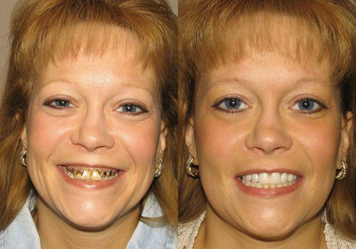 All-on-4 Photo Patient 2 | Guyette Facial & Oral Surgery, Scottsdale, AZ
