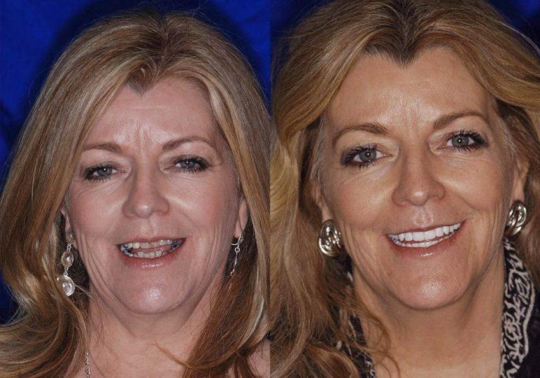 All-on-4 Photo Patient 4   Guyette Facial & Oral Surgery, Scottsdale, AZ