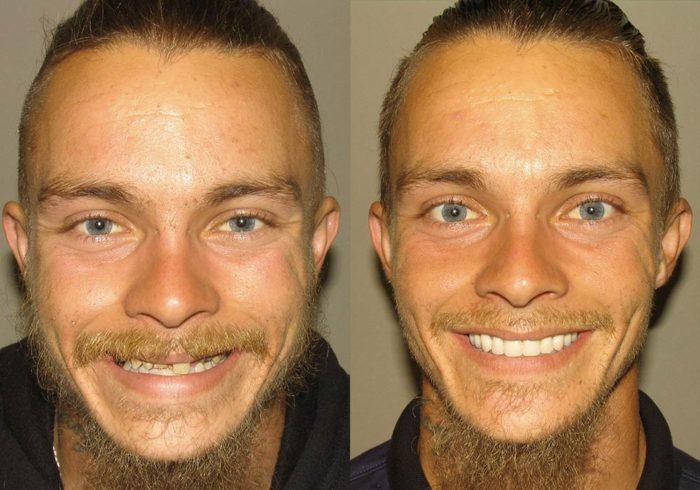 All-on-4 Photo Patient 5 | Guyette Facial & Oral Surgery, Scottsdale, AZ