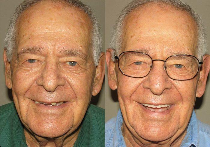All-on-4 Photo Patient 6 | Guyette Facial & Oral Surgery, Scottsdale, AZ