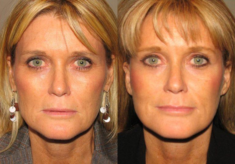 Brow Lift Patient 1 | Guyette Facial & Oral Surgery, Scottsdale, AZ