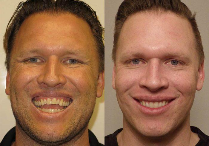 Corrective Jaw Surgery Photo Patient 2 | Guyette Facial & Oral Surgery, Scottsdale, AZ