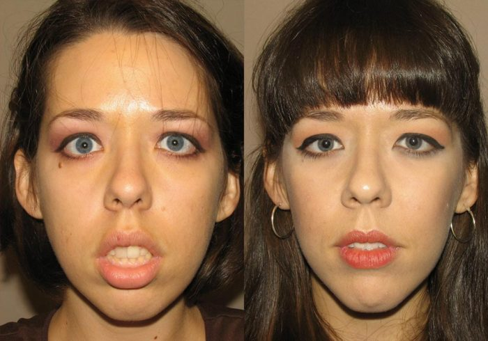 Facial Implants Patient 1   Guyette Facial & Oral Surgery, Scottsdale, AZ
