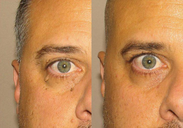 Mole Removal Patient 4 | Guyette Facial & Oral Surgery, Scottsdale, AZ