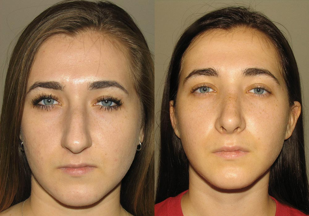 Rhinoplasty Patient 1 | Guyette Facial & Oral Surgery, Scottsdale, AZZ