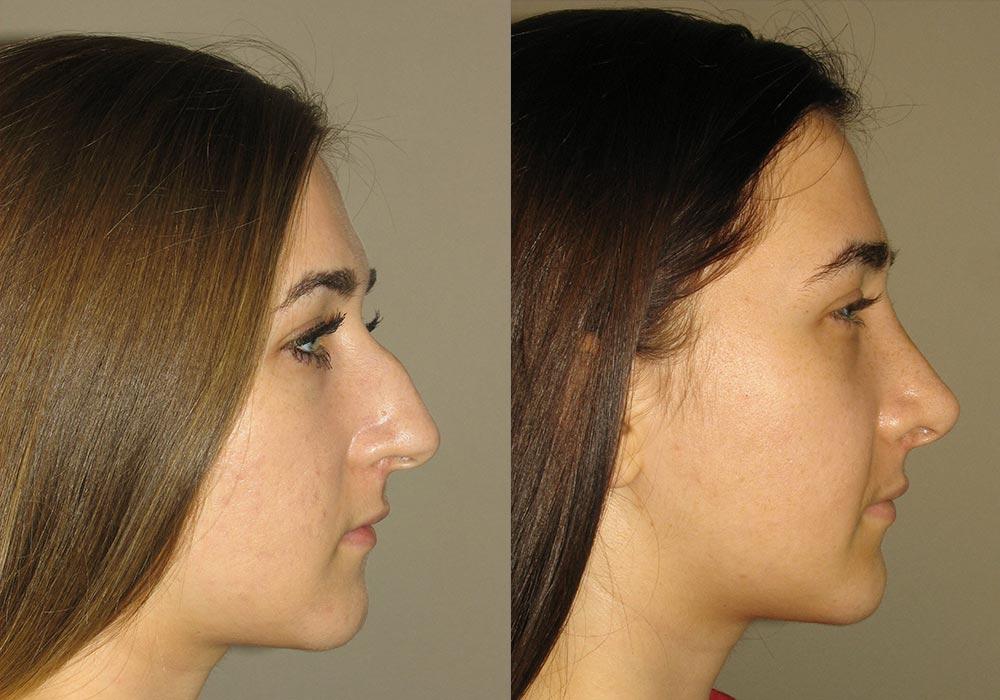 Rhinoplasty Patient 1 | Guyette Facial & Oral Surgery, Scottsdale, AZ