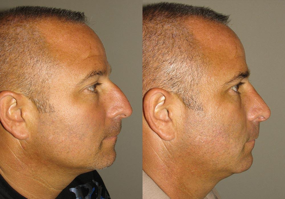 Rhinoplasty Patient 2 | Guyette Facial & Oral Surgery, Scottsdale, AZ