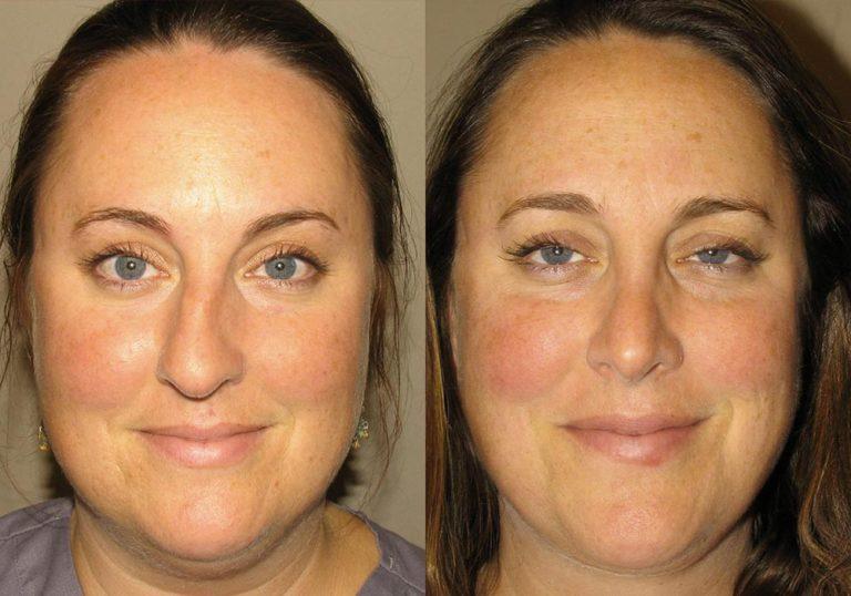 Rhinoplasty Patient 4 | Guyette Facial & Oral Surgery, Scottsdale, AZ