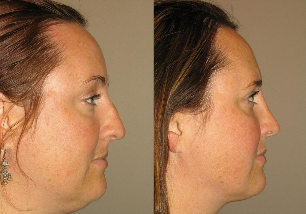 Rhinoplasty Patient 4 | Guyette Facial & Oral Surgery, Scottsdale, AZ
