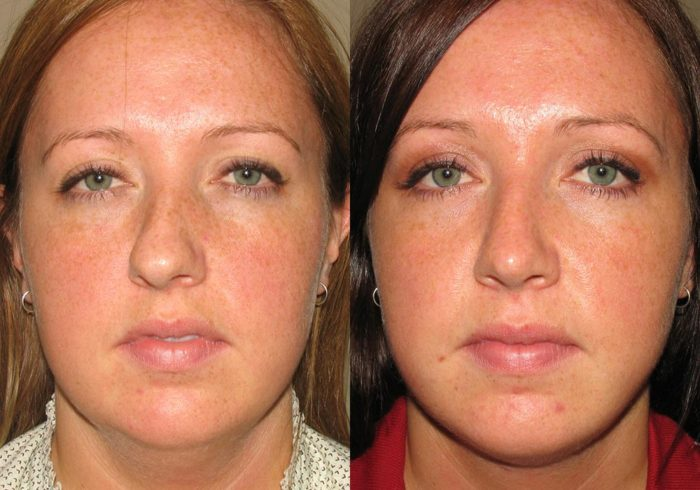 Rhinoplasty Patient 5 | Guyette Facial & Oral Surgery, Scottsdale, AZ