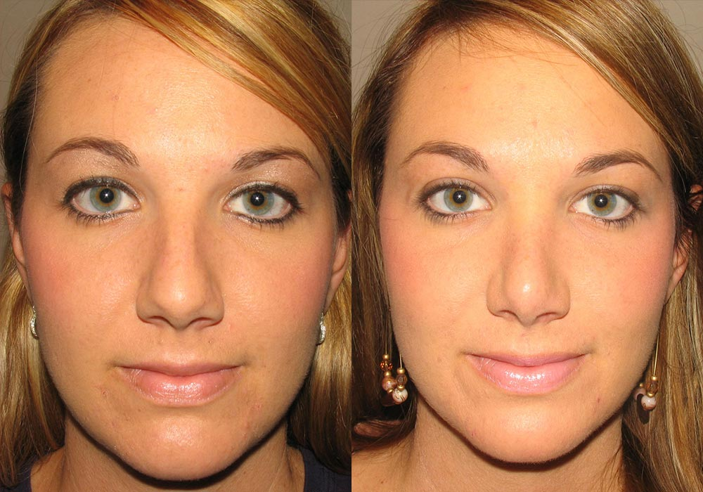 Rhinoplasty Patient 6   Guyette Facial & Oral Surgery, Scottsdale, AZ