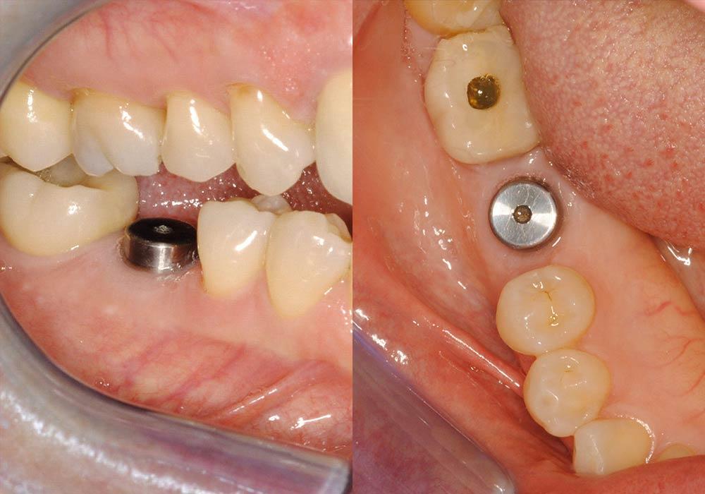 Dental Implants Photo Patient 1 | Guyette Facial & Oral Surgery, Scottsdale, AZ