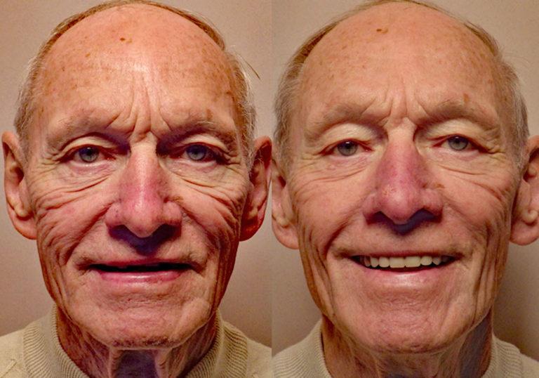 All-on-4 Photo Patient 8   Guyette Facial & Oral Surgery, Scottsdale, AZ