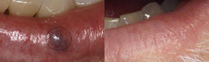Lesion Removal Patient 1   Guyette Facial & Oral Surgery, Scottsdale, AZ