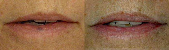 Lesion Removal Patient 2   Guyette Facial & Oral Surgery, Scottsdale, AZ