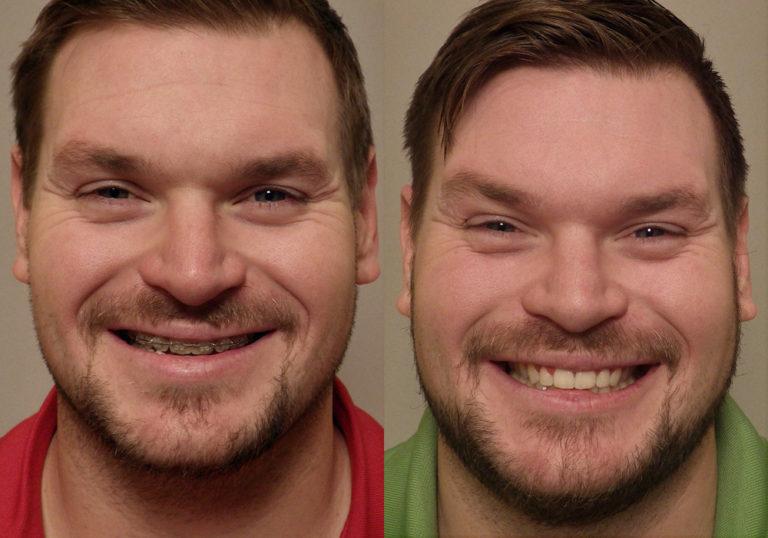 Jaw-Surgery Photo Patient 5 | Guyette Facial & Oral Surgery, Scottsdale, AZ