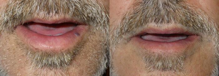 Lesion Removal Patient 4   Guyette Facial & Oral Surgery, Scottsdale, AZ
