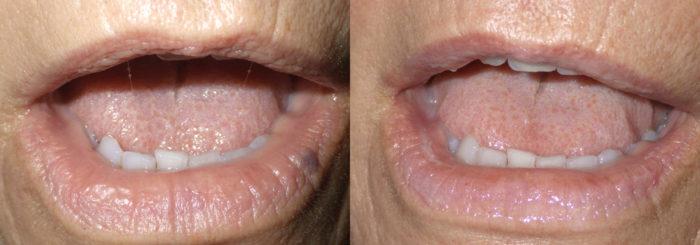 Lesion Removal Patient 3   Guyette Facial & Oral Surgery, Scottsdale, AZ