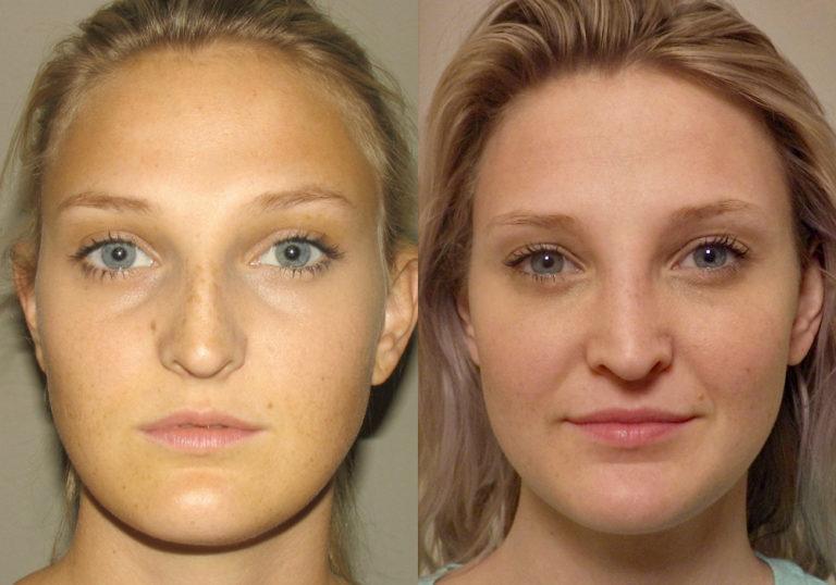 Rhinoplasty Patient 8 | Guyette Facial & Oral Surgery, Scottsdale, AZ