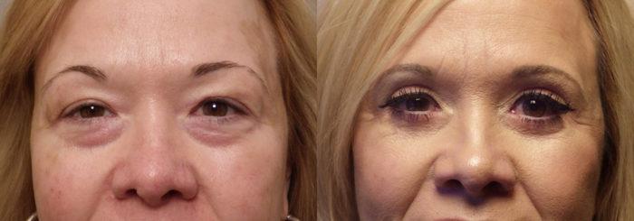 Blephorplasty-patient 19   Guyette Facial & Oral Surgery, Scottsdale, AZ