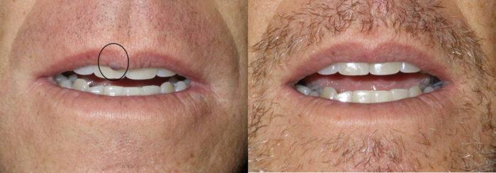 lesion removal patient 5   Guyette Facial & Oral Surgery, Scottsdale, AZ