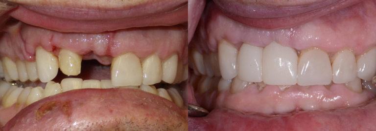 Dental IMmplant patient 3 | Guyette Facial & Oral Surgery, Scottsdale, AZ