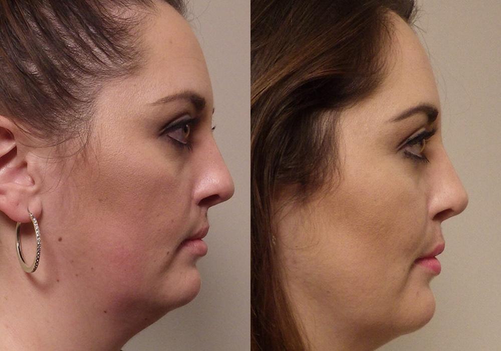 Rhinoplasty Patient 10 | Guyette Facial & oral Surgery, Scottsdale AZ