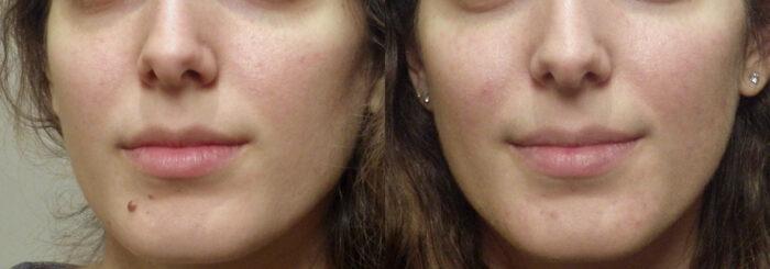 Guyette_mole_removal | Guyette Facial & Oral Surgery, Scottsdle, Phoenix, Avondlae