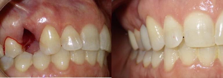 Dental Implants Photo Patient 7 | Guyette Facial & Oral Surgery, Scottsdale, AZ