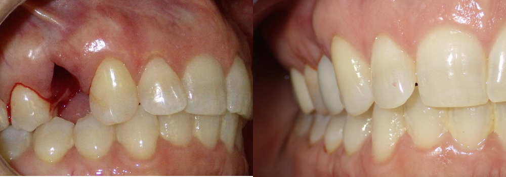 Dental Implants Photo Patient 7 | Guyette Facial & Oral Surgery, Scottsdale, AZ