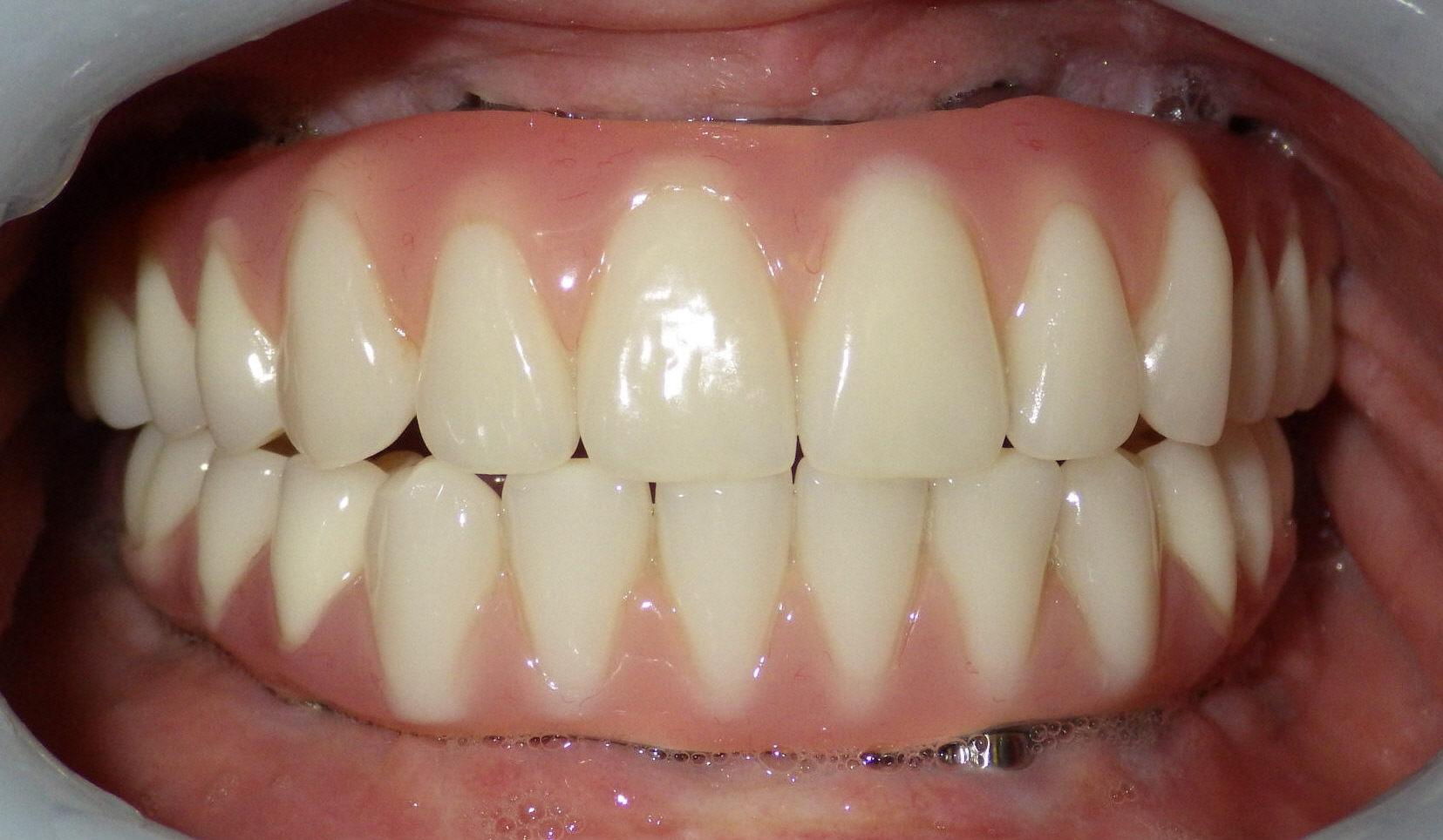 Post-procedure view of patient's teeth