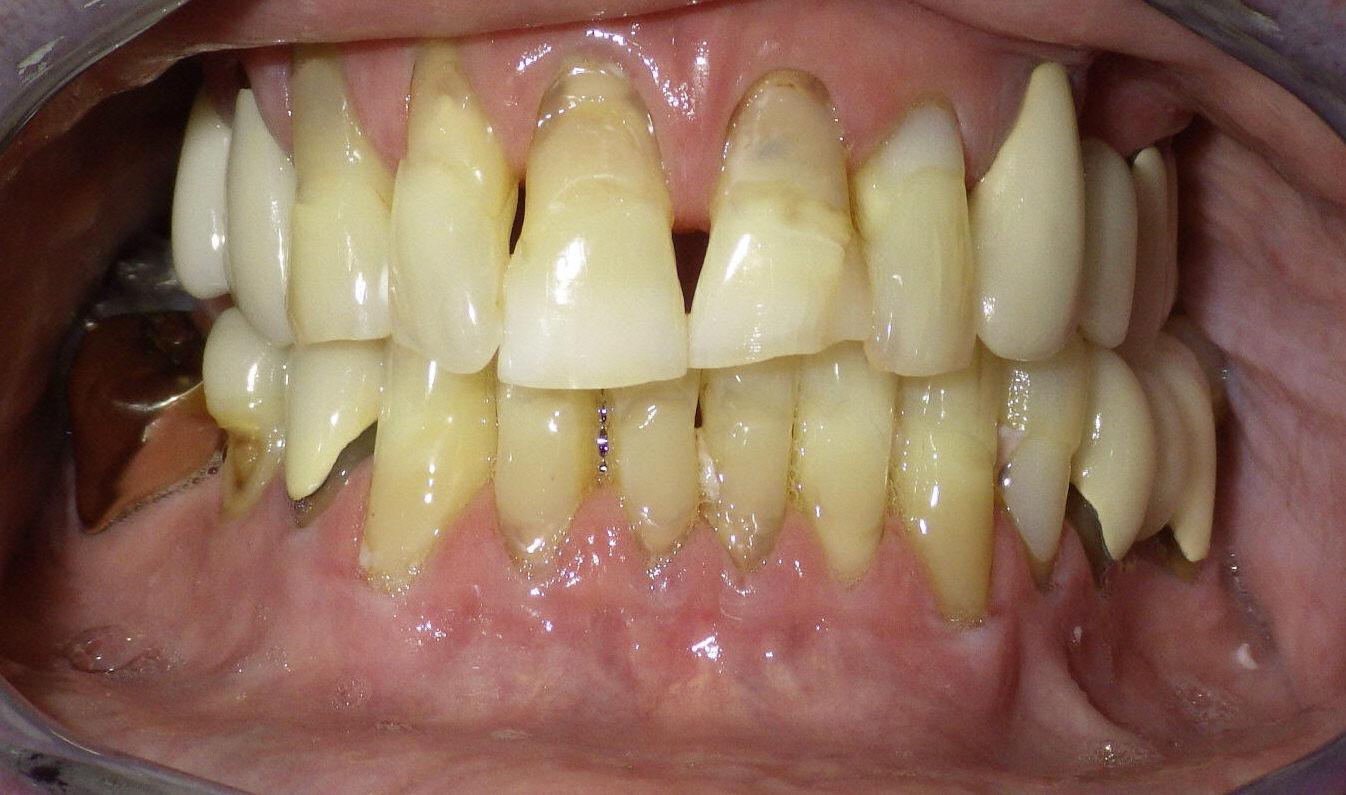 Pre-procedure view of patient's teeth