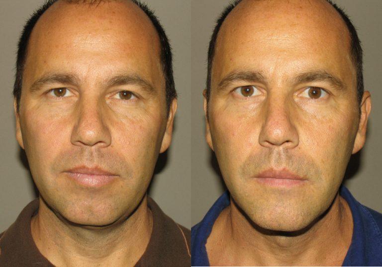 Facial Implant Photo Patient 3 | Guyette Facial & Oral Surgery, Scottsdale, AZ