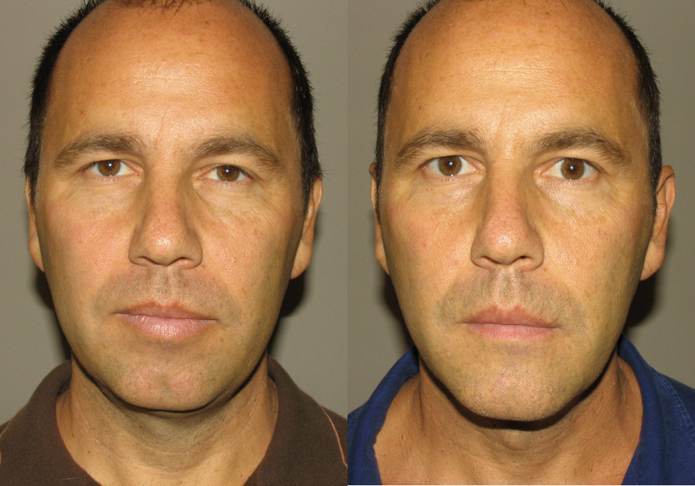 Facial Implant Photo Patient 3 | Guyette Facial & Oral Surgery, Scottsdale, AZ