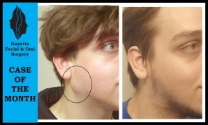 Cyst Removal photo patient 1 | Guyette Facial_&_Oral_Surgery, Scottsdale AZ Cyst