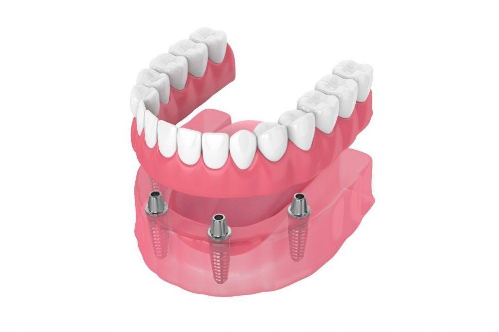 fixed-hybrid-dentures (1)
